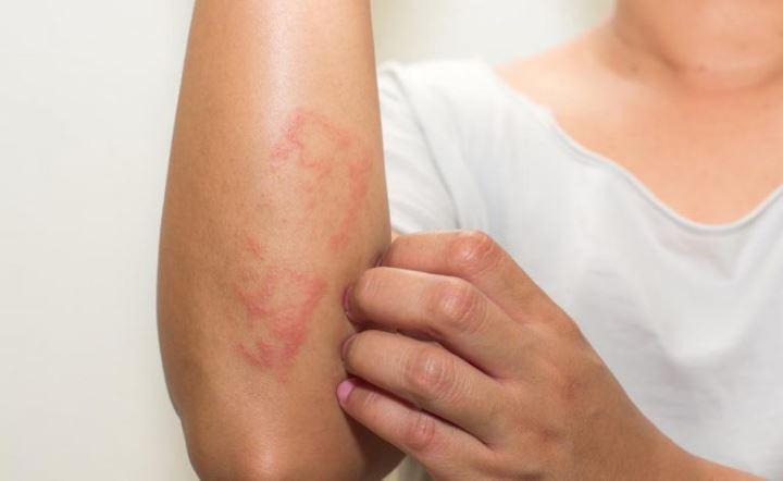 درمان التهاب های پوستی با استفاده از روغن اسطوخودوس
