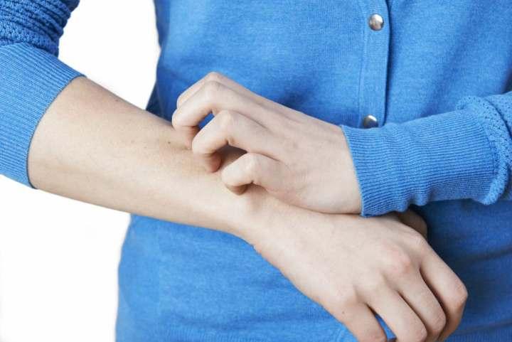درمان زونا - علائم زونا
