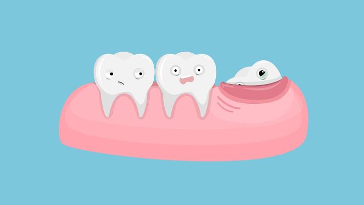 بینیازی انسان امروزی از دندان عقل
