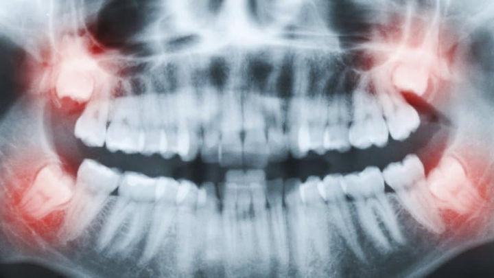 بررسی وضعیت دندان عقل
