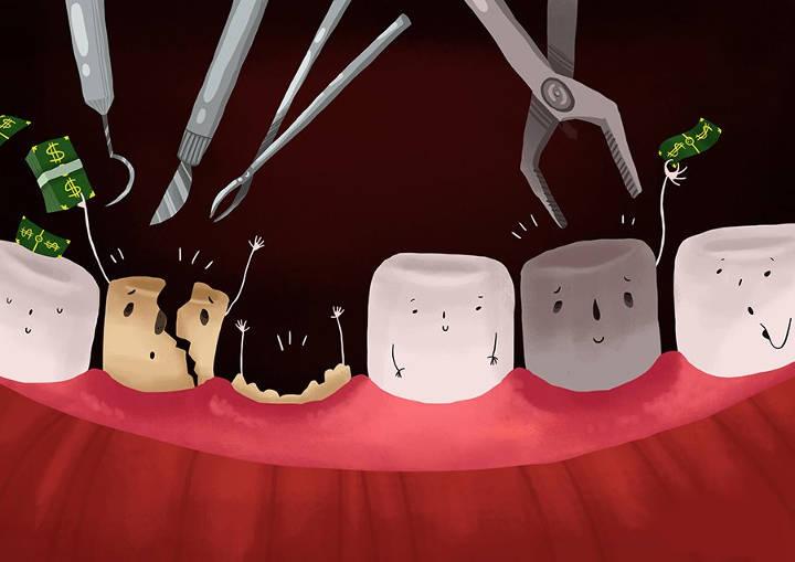 هزینهٔ کشیدن دندان عقل