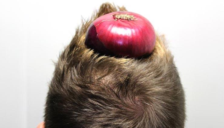خواص آب پیاز برای مو؛ آب پیاز چگونه به رشد مو کمک میکند؟
