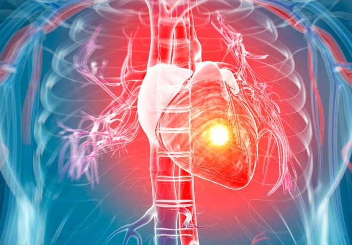 چرا نوشیدنیهای انرژیزا برای قلب ضرر دارند؟ - مصرف نوشیدنی های انرژی زا باعث تغییر ریتم طبیعی ضربان قلب می شوند.