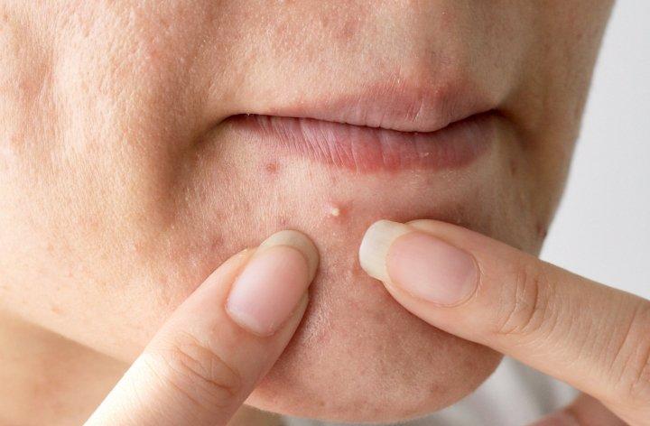 برای درمان آکنه بزرگسالی قبل از زمان مناسب جوش های سر سفید را تخلیه نکنید