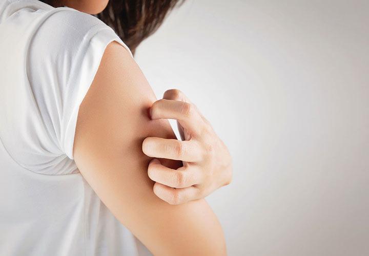برخی واکنش های پوستی مانند راش یا خارش ملایم از عوارض محصولات پروبیوتیک هستند.