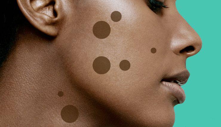 9 روش برای از بین بردن لکه های قهوه ای پوست و بررسی علت بروز آنها