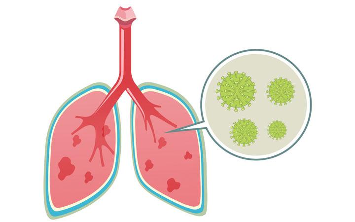 ویروس کرونا با بدن ما چه میکند؟ - ریه ها