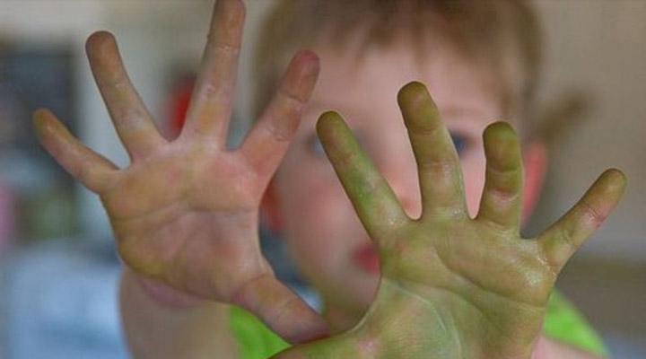 طرز تهیه محلول ضدعفونی کننده دست ویژه کودکان