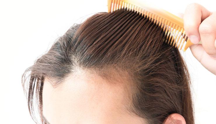 ریزش مو در تابستان