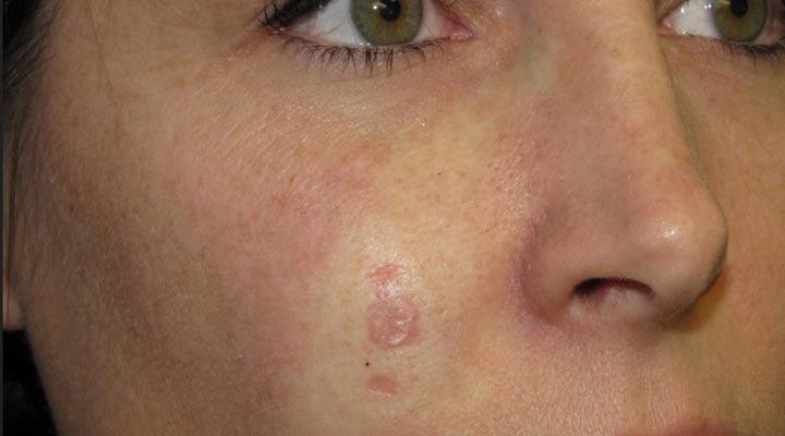 سرطان سلولی پایهای یکی از شایع ترین مشکلات پوستی است