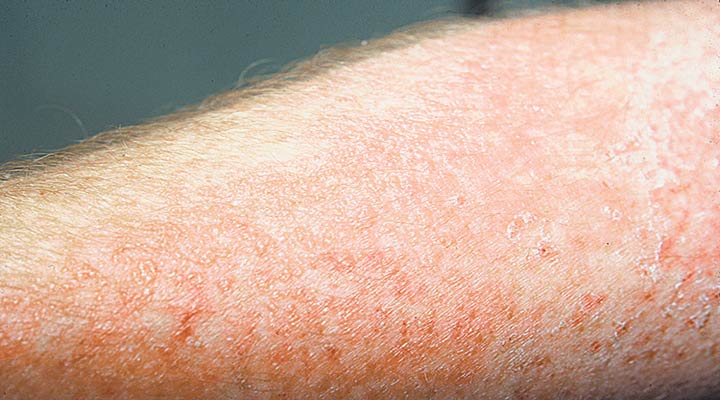 کنتاکت درماتیت یکی از بیماریهای پوستی شایع است