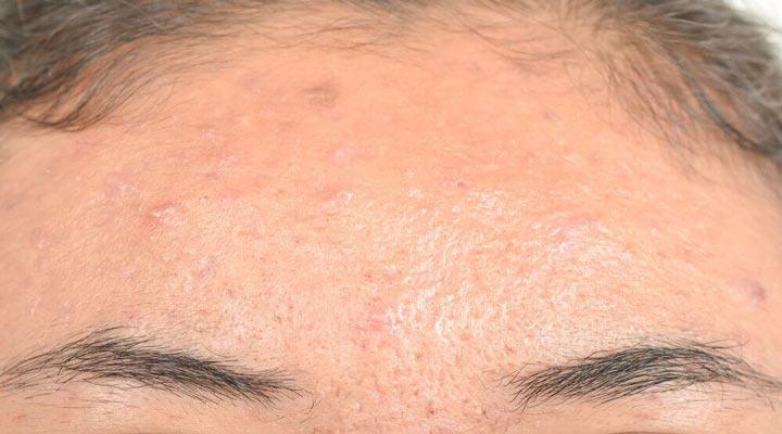 درماتیت سبوریکا یکی از شایع ترین مشکلات پوستی است