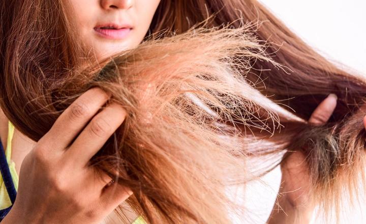 درمان خشکی مو - خشکی موی سر چیست