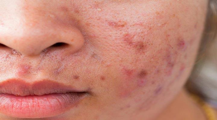 آکنه یکی از شایع ترین مشکلات پوستی است