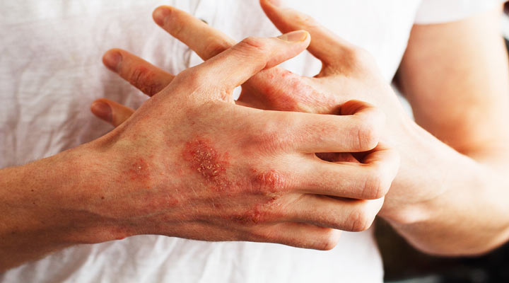 اگزما یکی از شایع ترین مشکلات پوستی است
