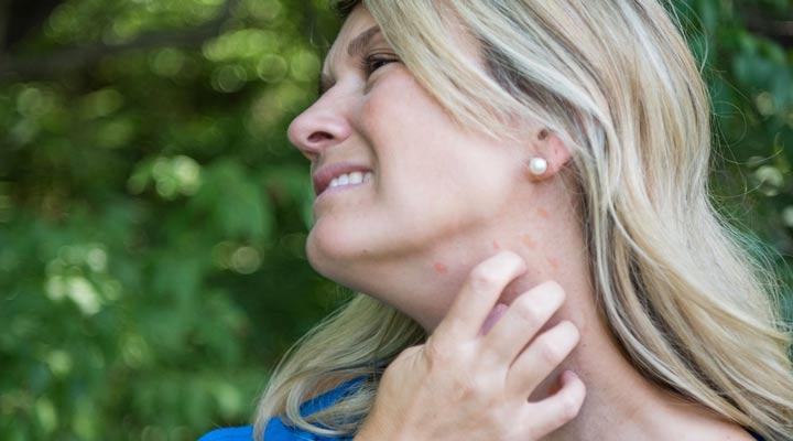 خواص درمانی عسل برای جوش صورت - درصور تداشتن آلرژی به عسل استفاده از آن میتواند موجب بروز کهیر یا بدترشدن جوش بشود.