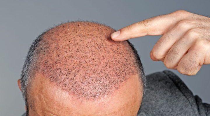 کرونا و ریزش مو ـ روشهایی برای درمان ریزش مو