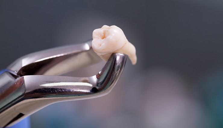 دلایل کشیدن دندان و مراقبت های پس از آن
