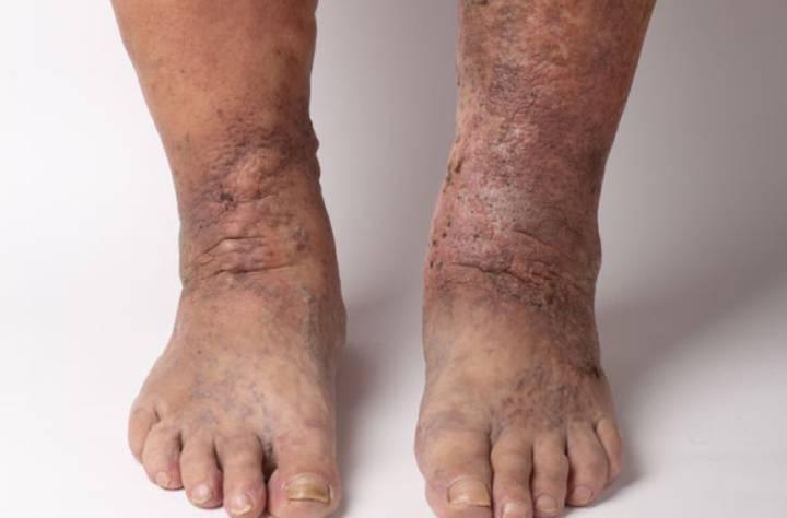علائم نارسایی وریدی در پاها