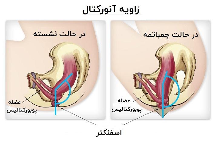 توالت ایرانی یا فرنگی - زاویه آنورکتال در وضعیت چمباتمه بیشتر باز می شود