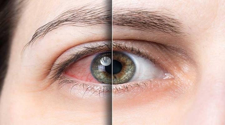 حساسیت چشم به نور به دلیل سندرم خشکی چشم