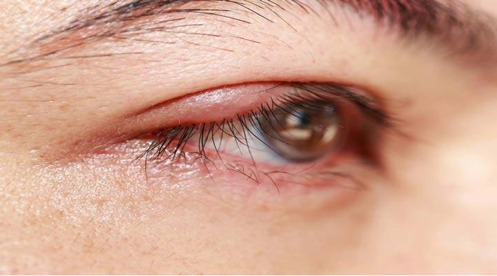 بلفاریت از بیماریهایی که انگل دمودکس آن را تشدید میکند